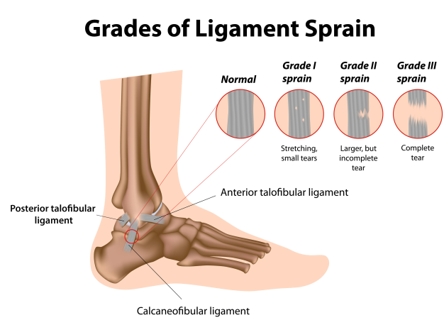 ankle sprain prevention and cure